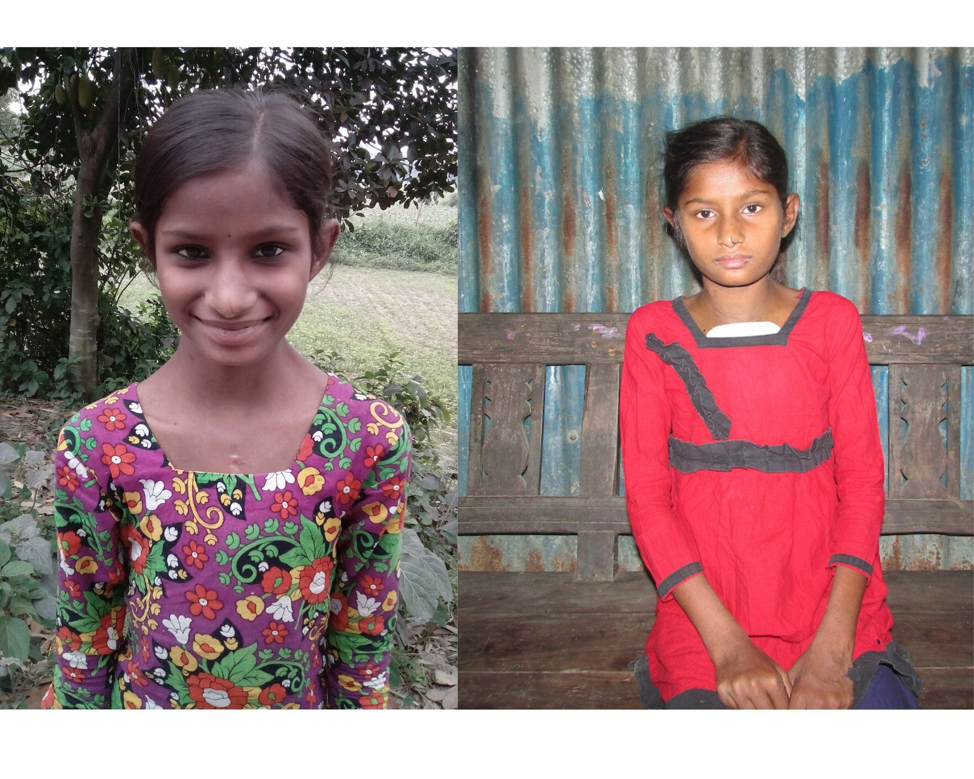 Portrait of a girl before and after open heart surgery